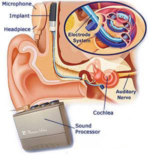Cochlear Implant, Cochlear Implant Surgery Delhi India, Cochlear Implant Surgery Bangalore India