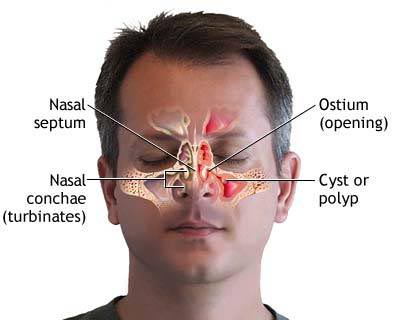 Sinusitis Treatment, Sinusitis Ayurvedic Treatment, Sinusitis Cure, Sinusitis In Children