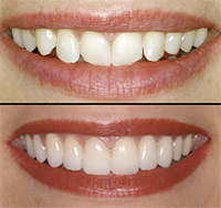 Clip On Veneers http://indiahealthtour.com/treatments/dental/teeth-porcelain-veneers-treatment-india.html