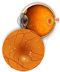 Diabetic Retinopathy Surgery, Eye Specialists, Eyestrain, Eye Tests, Nearsighted, Myopia, Near Vision