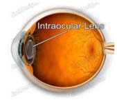 Lens Implants, Crystalens, IOL Intraocular Lens Implant Treatment Bangalore India, Cataract Surgery
