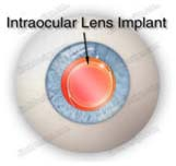 Implantable Collamer Lenses, Effective, Laser, Cataract Surgery, Cataract Surgery, Laser Eyelid Surgery