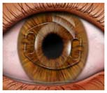 IOL Intraocular Lens Implant Treatment, Intraocular Lens Treatment India, Intraocular Lens