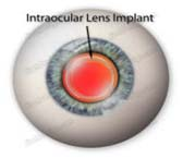 IOL Intraocular Lens Implant Treatment Mumbai India, Intraocular Lenses, IOL Intraocular Lens Implant Treatment Delhi Hospital