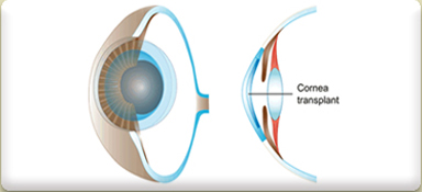 Corneal Transplant Treatment Cost, Corneal Transplantation, Corneal Transplant Treatment Mumbai India