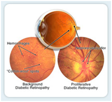 Diabetic Retinopathy Surgery Mumbai India, Diabetic Retinopathy Surgery Delhi India